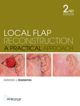 Penington | Local Flap Reconstruction | Buch | sack.de