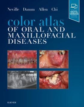 Neville / Damm / Allen | Color Atlas of Oral and Maxillofacial Diseases | Buch | sack.de