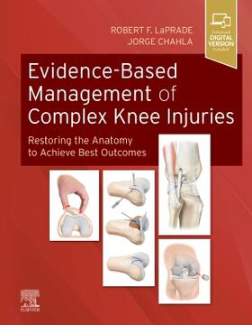 LaPrade / Chahla | Evidence-Based Management of Complex Knee Injuries | Buch | sack.de