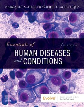 Frazier | Essentials of Human Diseases and Conditions | Buch | sack.de