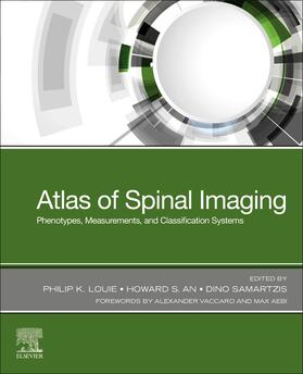 Louie / An / Samartzis | Atlas of Spinal Imaging | Buch | sack.de