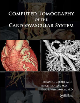 Gerber / Kantor / Williamson   Computed Tomography of the Cardiovascular System   Buch   sack.de