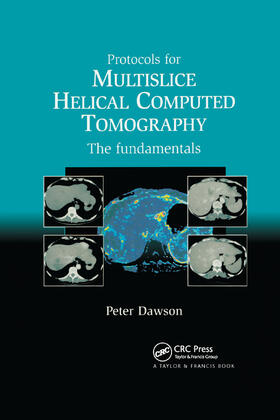 Peter | Protocols for Multislice Helical Computed Tomography | Buch | sack.de