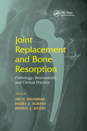 Shanbhag / Rubash / Jacobs | Joint Replacement and Bone Resorption | Buch | sack.de