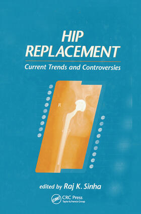 Sinha   Hip Replacement   Buch   sack.de