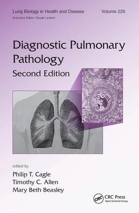 Cagle / Allen / Beasley | Diagnostic Pulmonary Pathology | Buch | sack.de