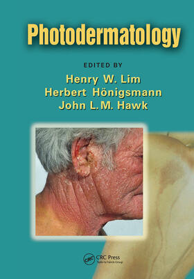 Lim / Honigsmann / Hawk | Photodermatology | Buch | sack.de