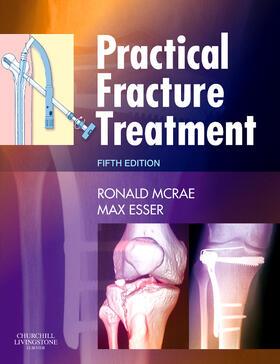 McRae / Esser   Practical Fracture Treatment   Buch   sack.de