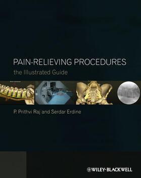 Raj / Erdine | Pain-Relieving Procedures | Buch | sack.de