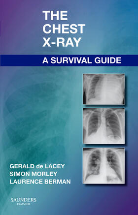 de Lacey / Morley / Berman | The Chest X-Ray: A Survival Guide | Buch | sack.de