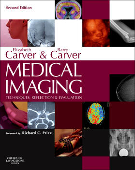 Carver / Carver | Medical Imaging | Buch | sack.de