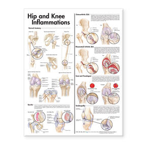 Hip and Knee Inflammations Anatomical Chart | Sonstiges | sack.de