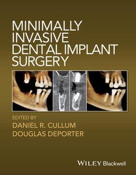 Cullum / Deporter | Minimally Invasive Dental Implant Surgery | Buch | sack.de