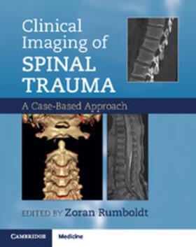 Rumboldt / Cianfoni / Varma | Clinical Imaging of Spinal Trauma | Buch | sack.de