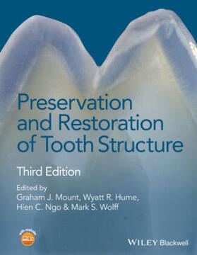 Mount / Hume / Ngo | Preservation and Restoration of Tooth Structure | Buch | sack.de