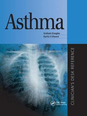 Douglas / Elward | Asthma | Buch | sack.de