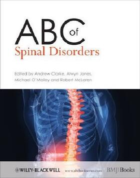 Clarke / Jones / O'Malley | ABC of Spinal Disorders | Buch | sack.de