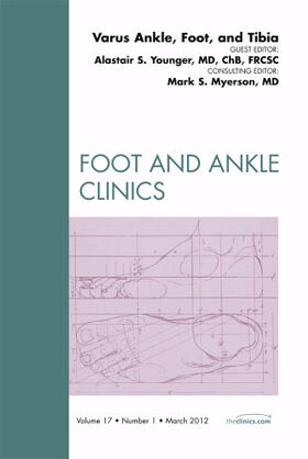 Younger | Varus Foot, Ankle, and Tibia, an Issue of Foot and Ankle Clinics, Volume 17-1 | Buch | sack.de