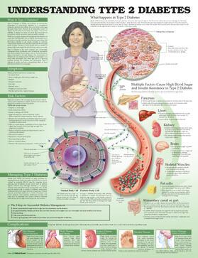 Unger   Understanding Type 2 Diabetes Anatomical Chart   Sonstiges   sack.de