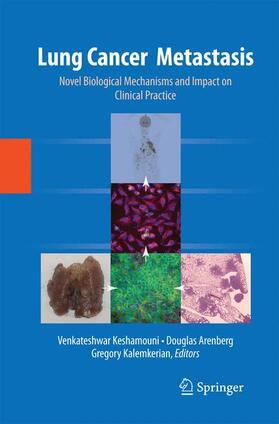 Keshamouni / Arenberg / Kalemkerian | Lung Cancer Metastasis | Buch | sack.de