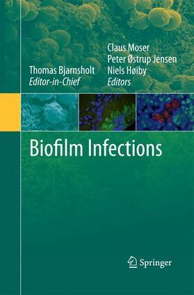 Høiby / Jensen / Moser | Biofilm Infections | Buch | sack.de