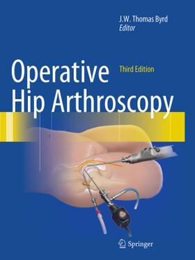 Byrd | Operative Hip Arthroscopy | Buch | sack.de