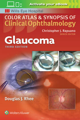 Rhee | Glaucoma (Color Atlas and Synopsis of Clinical Ophthalmology) | Buch | sack.de