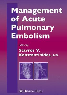 Konstantinides   Management of Acute Pulmonary Embolism   Buch   sack.de