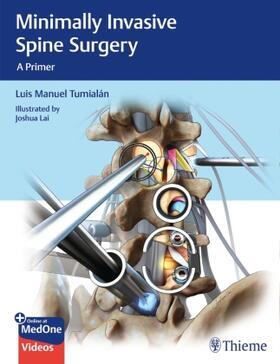Tumialan / Tumialan | Minimally Invasive Spine Surgery | Buch | sack.de