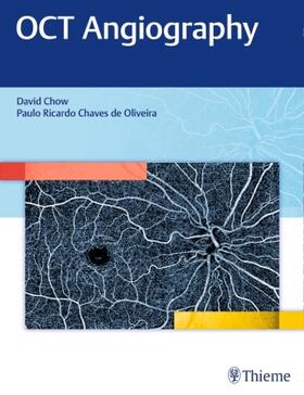 Chow | OCT Angiography | Buch | sack.de