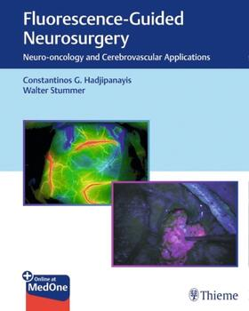 Stummer / Hadjipanayis | Fluorescence-Guided Neurosurgery | Buch | sack.de