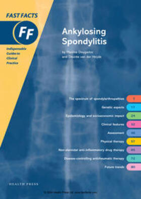 Dougados / van der Heijde   Fast Facts: Ankylosing Spondylitis   Buch   sack.de