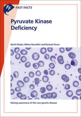 Glader / Barcellini / Grace   Fast Facts: Pyruvate Kinase Deficiency   Buch   sack.de