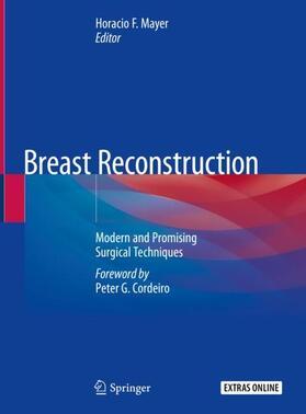 Mayer | Breast Reconstruction | Buch | sack.de