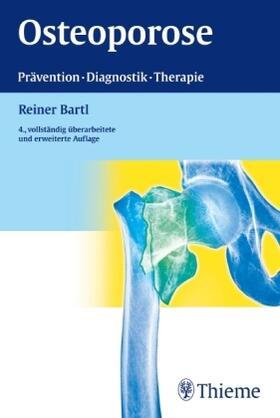 Bartl | Osteoporose | Buch | sack.de