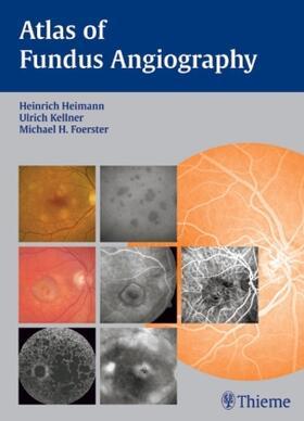 Heimann / Foerster / Kellner   Atlas of Fundus Angiography   Buch   sack.de