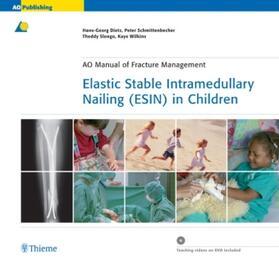Dietz / Schmittenbecher / Slongo | Elastic Stable Intramedullary Nailing (ESIN) in Children | Buch | sack.de