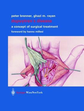Brenner / Rayan | Dupuytren's Disease | Buch | sack.de