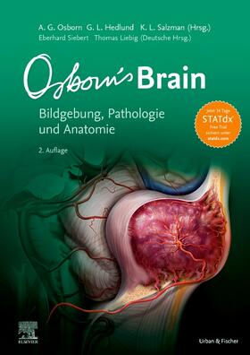 Osborn / Hedlund / Salzman | Osborn's Brain | Buch | sack.de