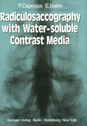 Capesius / Babin | Radiculosaccography with Water-soluble Contrast Media | Buch | sack.de