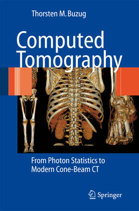 Buzug | Computed Tomography | Buch | sack.de