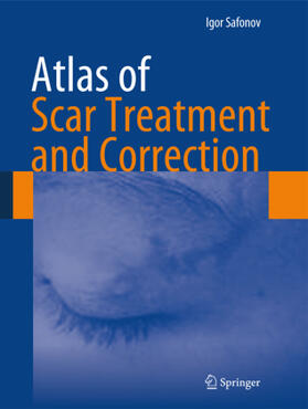 Safonov | Atlas of Scar Treatment and Correction | Buch | sack.de