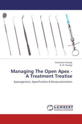 Rudagi / Rudagi | Managing The Open Apex - A Treatment Treatise | Buch | sack.de