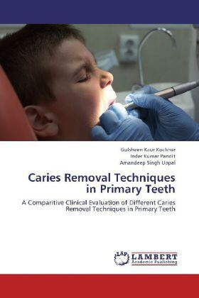 Kochhar / Pandit / Uppal | Caries Removal Techniques in Primary Teeth | Buch | sack.de