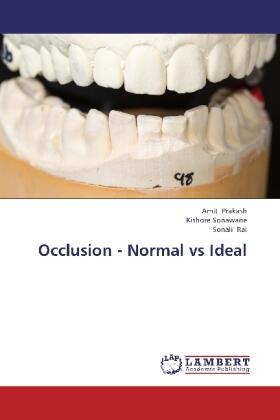 Occlusion - Normal vs Ideal | Buch | sack.de