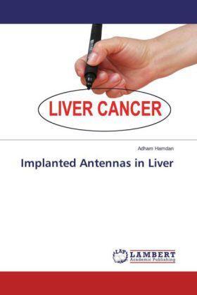 Hamdan | Implanted Antennas in Liver | Buch | sack.de