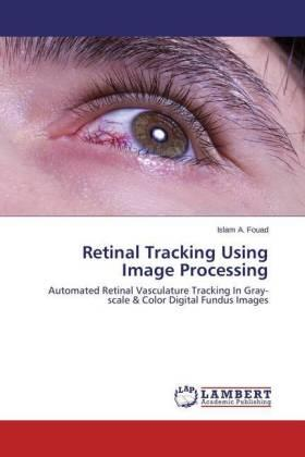Fouad | Retinal Tracking Using Image Processing | Buch | sack.de