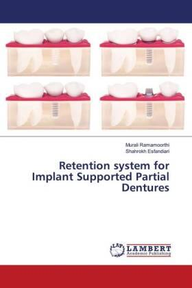 Retention system for Implant Supported Partial Dentures | Buch | sack.de