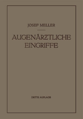 Meller | Augenärztliche Eingriffe | Buch | sack.de