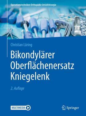 Lüring | Bikondylärer Oberflächenersatz Kniegelenk | Buch | sack.de